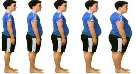 Obezitatea
